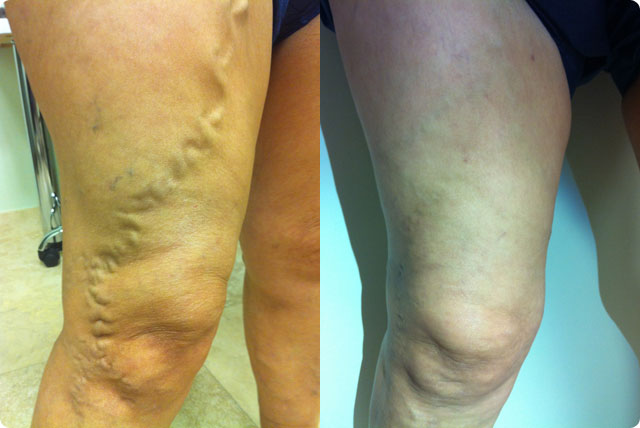 Patient Testimonials Before And After Photos North Beach