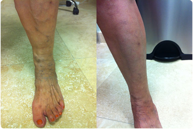 Before & After Varicose Vein Surgery